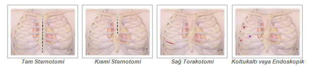 kalp-kapak-ameliyati-1